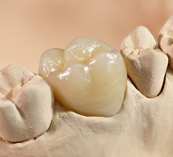 dental crown example