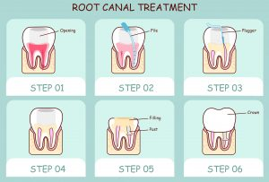 Root canal therapy in Rockledge restores a failing tooth to full health. Drs. NIchols or Collins of Premiere Walk-in Dental can determine when you need it.